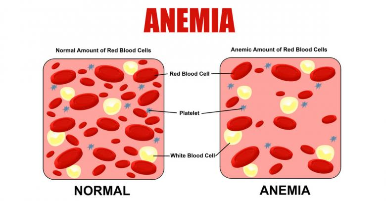Anemia, síntomas y causas