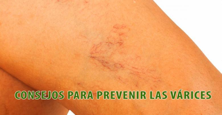 Consejos para prevenir las várices